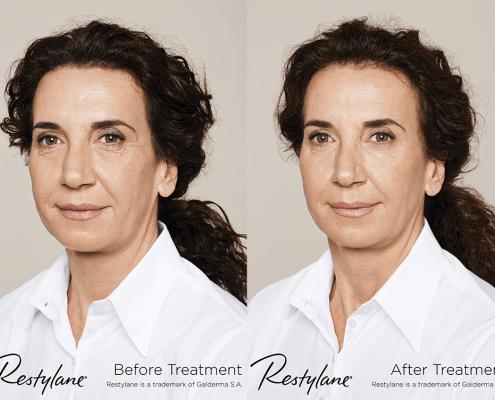 skin rejuvenation treatment in alsager