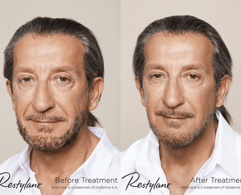 facial aesthetic treatment alsager
